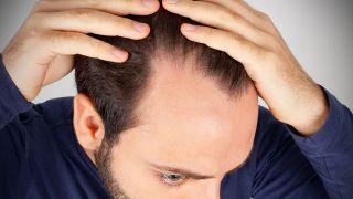 Sichtbar dünne haare kopfhaut Cornrows dünnes