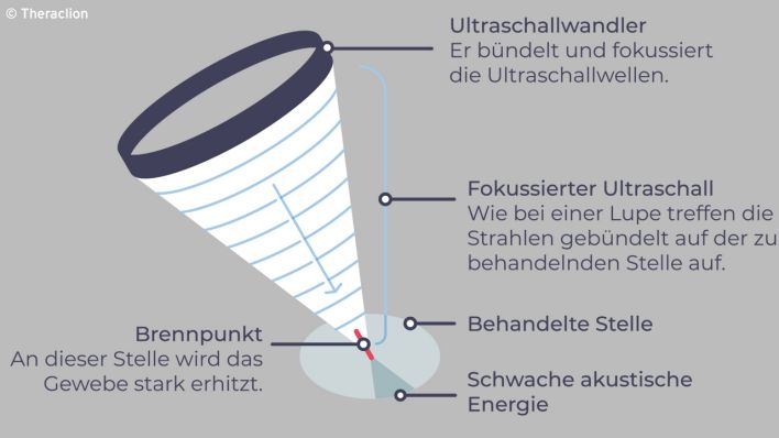 Grafik: Fokussierter Ultraschall (Quelle: Theraclion)