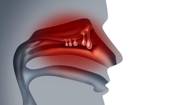 rotlicht bei nebenhöhlenentzündung