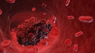 3D-Bild einer Thrombose (Bild: imago/Science Photo Library)