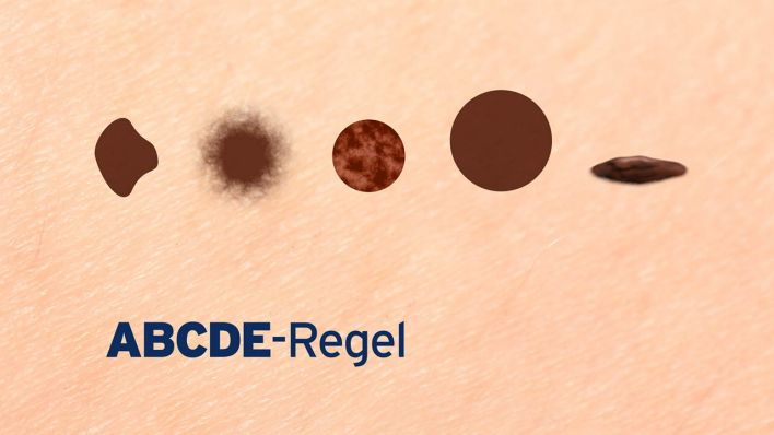 ABCDE - Regel (Quelle: rbb)